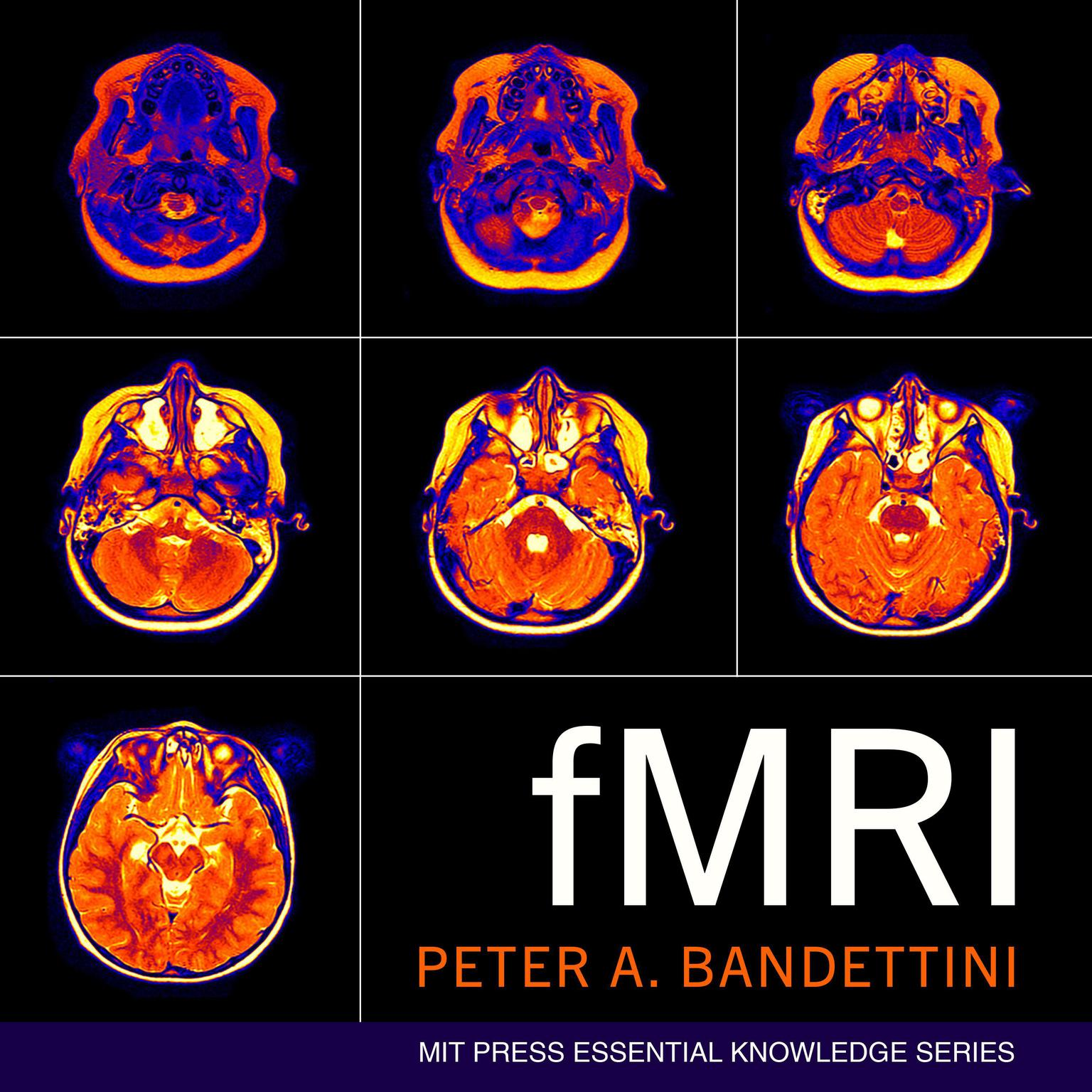 fMRI Audiobook, by Peter A. Bandettini