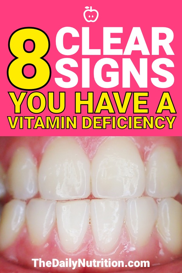 Vitamin deficiency is a problem that a lot of people may have without knowing it. Here are 8 signs that you have a vitamin deficiency.