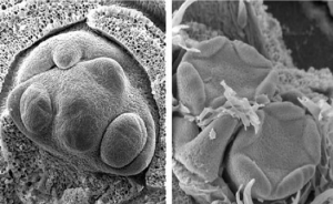 Scanning electron micrograph showing pistil differentiation.
