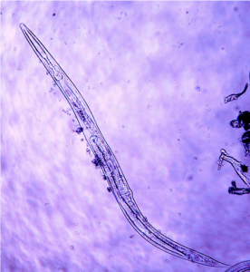 Micrograph of nematode.