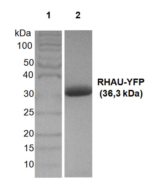Figure 2   Lane 1: 100 kDa ladder; Lane 2: Purified RHAU-YFP.