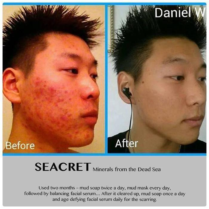 Acne Light Therapy Mask SEACRET SKINCARE MINERALS SALT MUD FROM DEAD SEA ECZEMA ...
