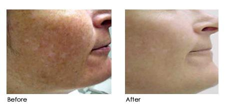 Tattoo Removal Electra Laser Hair Removal Vancouver City