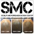 Hair Follicle Simulation and Scalp Micropigmentation Hair Density Treatment