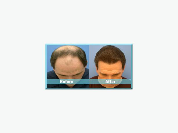 Satyam Hair Transplant in Canada