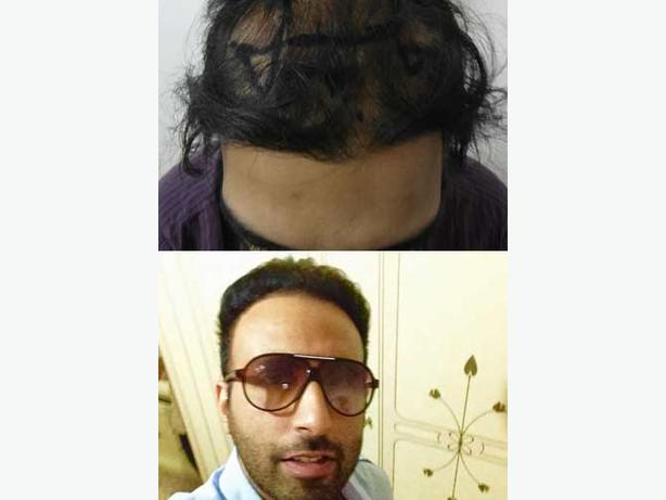 Hair Transplant Cost in Canada