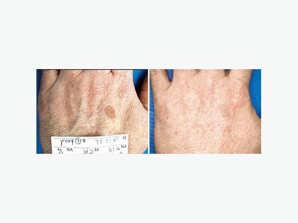 Skin Rejuvenation   DermaSpark Products Inc.