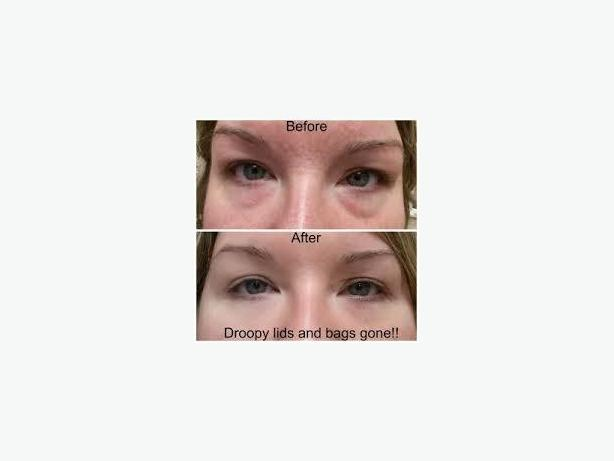 BOTOX IN A BOTTLE - SAFER  AND COST EFFECTIVE