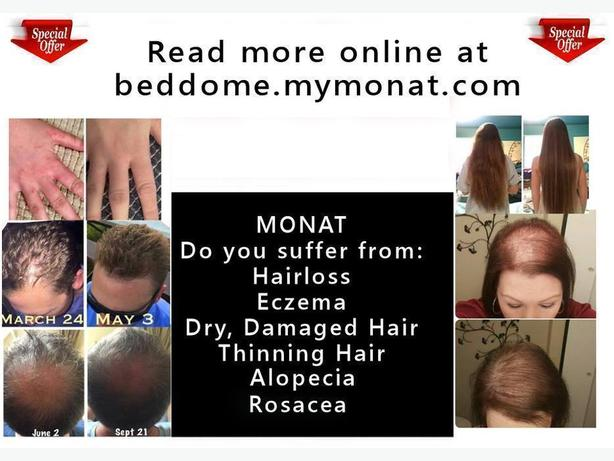 Monat Consultants Needed - Thinning hair, hair loss, dry damaged hair