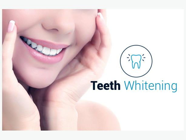 Repair Your Smile with Advanced Teeth Whitening Treatment in London