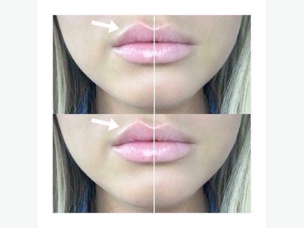 lip balm plumping