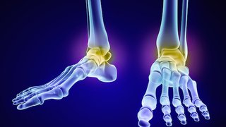 How we use a 3D printer to replace ankle bones and restore movement