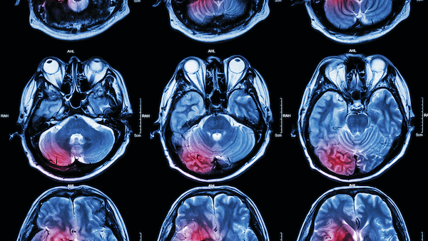 Q+A: Advances in Brain Tumor Treatment