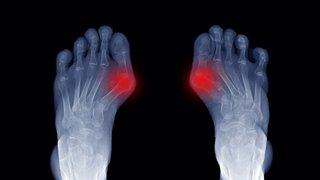 3D bunion surgery gets you back on your feet faster
