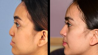 Cleft lip revision, rhinoplasty can restore confidence for teens and adults