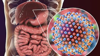 Hepatitis C treatment can cut risk of liver-related death by 50% for patients with a history of liver cancer