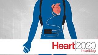 LVADs no longer just a bridge, but a long-term alternative to heart transplant