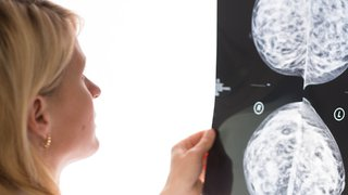 3 ways patients benefit from 3D mammograms