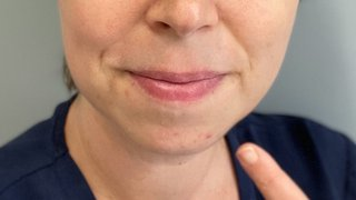 Prevent pimples and avoid 'maskne' with pregnancy-safe acne treatments