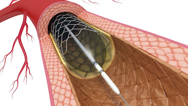 How PCI stenting can reduce chest pain and heart attack damage – without surgery
