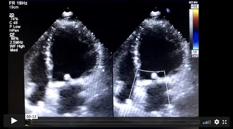 Echocardiogram2