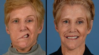 How Susan got her smile back: A journey overcoming facial paralysis