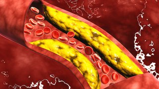 Pregnancy, statins, and high cholesterol: What women need to know