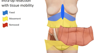 Tailoring the dress or suit: The benefits of skin removal surgery after major weight loss