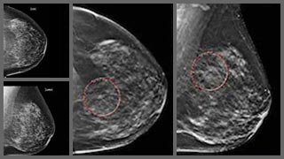 A big step for breast health in Texas: 3-D mammograms now covered by insurance