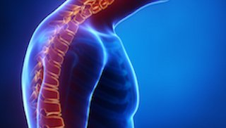 Find relief from four common spinal deformities – often without surgery