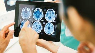 4 major advancements in brain surgery since 2000