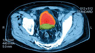 New Breakthroughs in Prostate Cancer Treatment