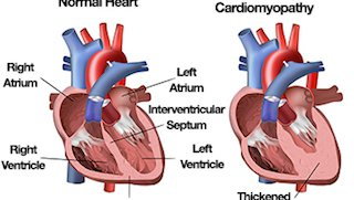 Hypertrophic cardiomyopathy affects young and old