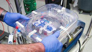 Portable ECMO Machine Adds Another Option to Lung Transplant Program Portfolio