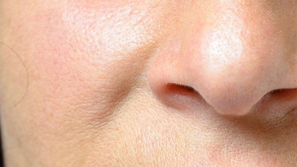 treatment for inverted nasal papilloma verb de detectare a insectelor