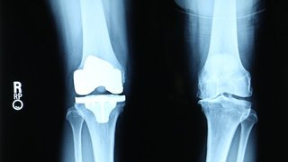 When is it time for a knee replacement?
