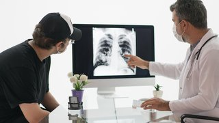 Lung cancer in young nonsmokers is on the rise: Uncovering the cause
