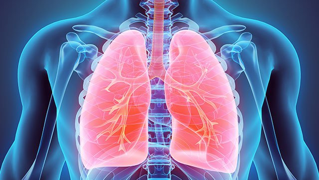 Breathing Easier: New Relief for Patients with Severe Emphysema