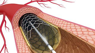 Percutaneous VSD Closure is Saving Lives of Heart Attack Patients