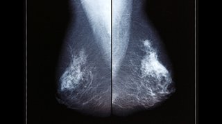 Personalized treatment is key for Stage 0 breast cancer