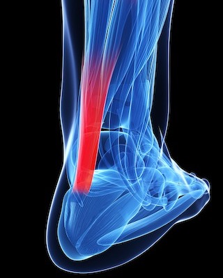 Achilles tendon diagram 320.jpg