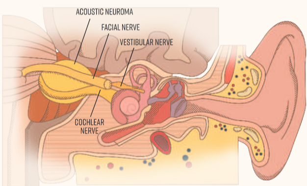 Acoustic neuroma diagram