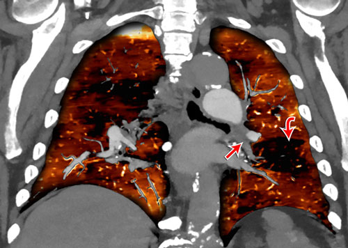 Chronic thromboembolic pulmonary hypertension CT scan