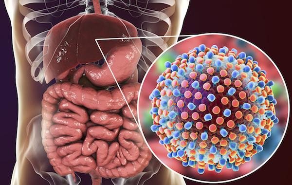 Hepatits C Liver
