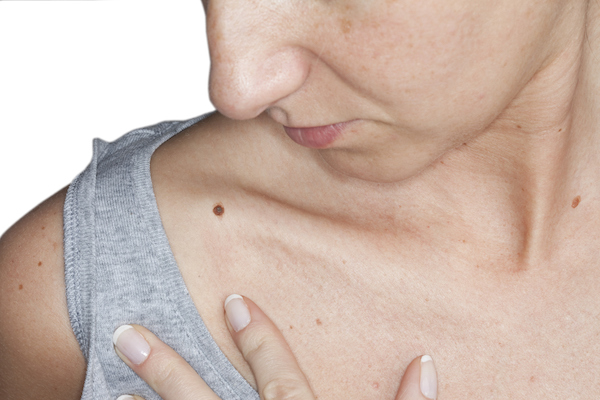 3 skin cancer treatments that might stop melanoma in its tracks
