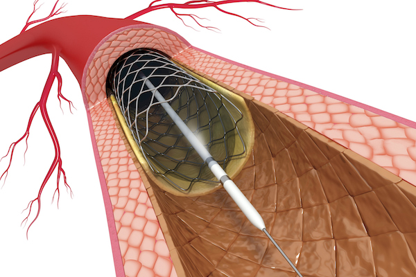 how pci stenting can reduce chest pain and heart attack