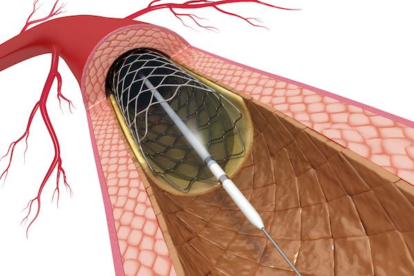 Image result for stent, pcı