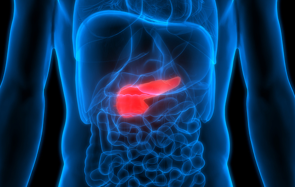 Pancreatic cancer 600 x380