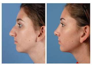 Rhinoplasty: What to expect before and after a 'nose job' | Plastic