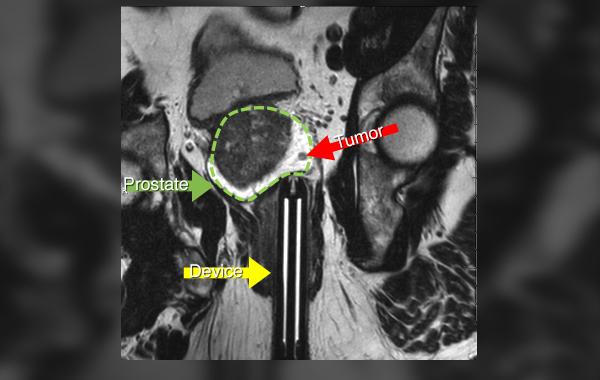 TULSA device-tumor.jpg